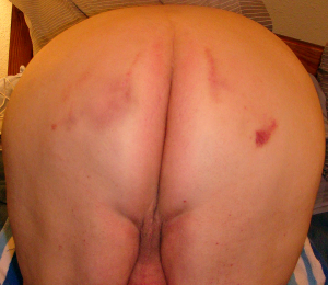 bare, spanked lion bottom