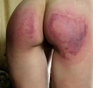 severely spanked bottom